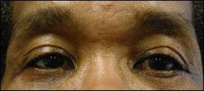 Blepharoplasty Picture - Male Patients