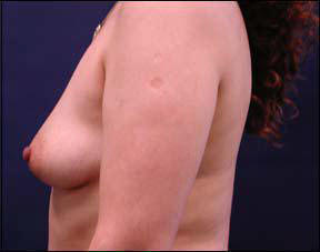 38 year old female Chicago Breast Augmentation Pictures