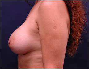 38 year old female Chicago Breast Augmentation Photo