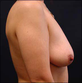 30 year old female Chicago Breast Augmentation Pictures