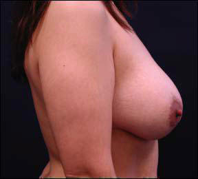 30 year old female Chicago Breast Augmentation Photo