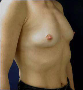 23 year old athletic female Chicago Breast Augmentation pictures