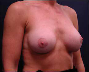 23 year old athletic female Chicago Breast Augmentation photos