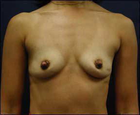 39 year old female Chicago Breast Augmentation Pictures