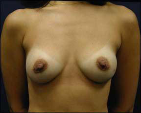 39 year old female Chicago Breast Augmentation Photo