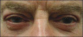 Blepharoplasty Picture - Patient Results