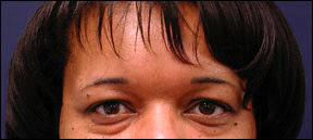 Blepharoplasty Picture - Varied Skin Tone