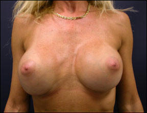Breast Augmentation Before and After Photo - Post-surgical photos.