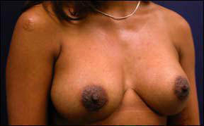 Breast Augmentation Before and After - Notice the improved projection after surgery.