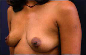 Breast Augmentation Before and After - Learn more about breast augmentation.