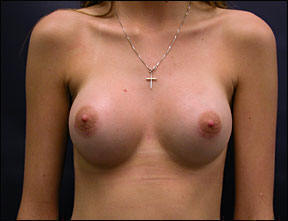 Hormonal Changes And Breast Pain