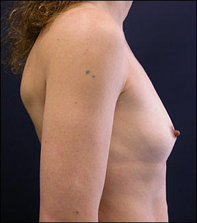 Breast Augmentation Before and After Photo - Educate yourself about breast augmentation.