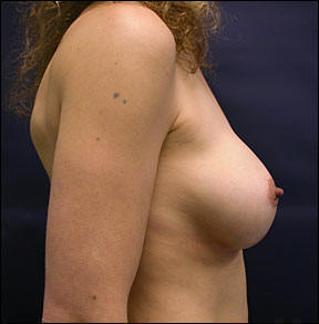 Breast Augmentation Before and After Photo - Review Dr. Speron's expertise.