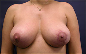 Breast Lift Photo - Results
