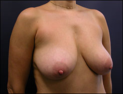 Breast Lift Photo - Scarring