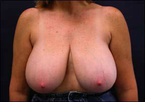 Breast Reduction Picture - No Horizontal Scars