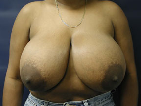 Breast Reduction Photo - See Patient Results