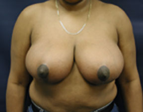 Breast Reduction Photo- Great Results