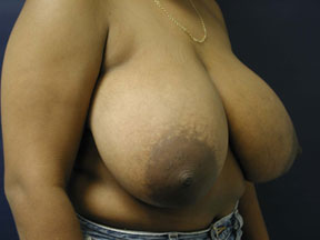 Breast Reduction Photo - Patients of All Ages