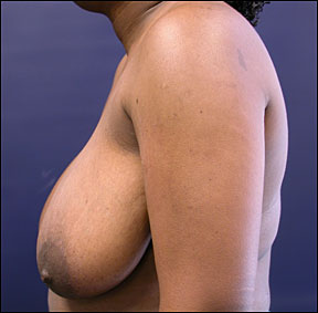 Breast Reduction Picture - The Post-Surgical Results