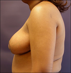 Breast Reduction Picture - Bilateral Reduction Results