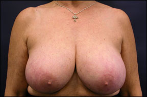 Breast Surgery - Breast Reduction Surgery