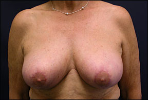 Breast Surgery - Vertical Breast Reduction