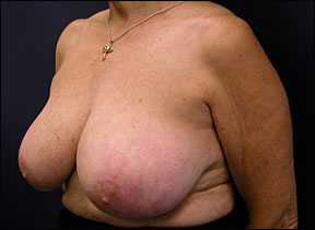 Breast Surgery - Post-Surgical Results