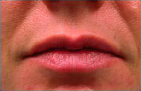 Lip Collagen - After Injections