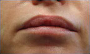 Lip Augmentation Picture - Radiance and Cymetra Results