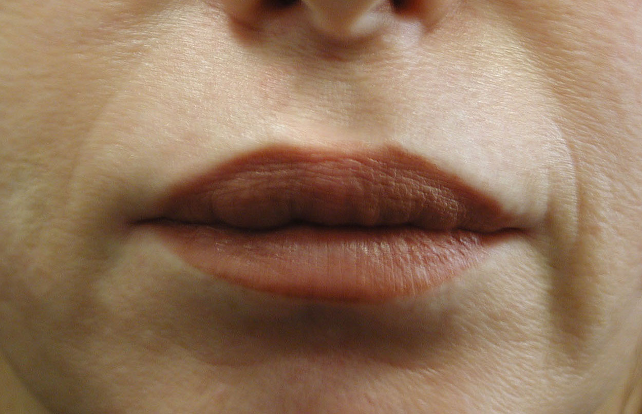 Lip Augmentation Picture - Rejuvenation to the Lips