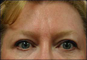 Brow Lift Picture - View Patient Results
