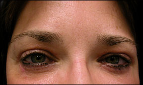 Brow Lift Photo - Youthful Appearance