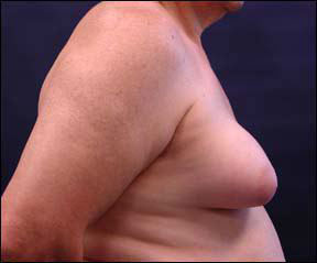 Gynecomastia Picture - See Before and After Photos