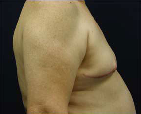 Gynecomastia Picture - See the Results