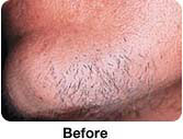 Hair Removal - Male patient Before and After