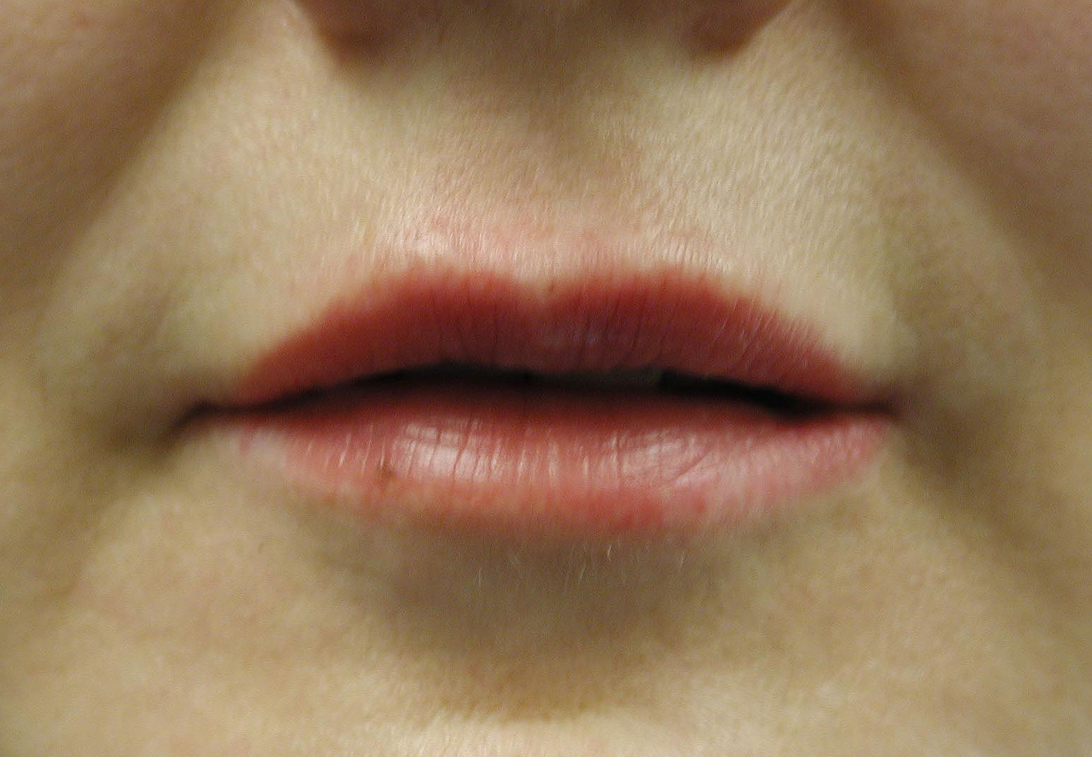 Collagen Injection - Lip Injection Pictures
