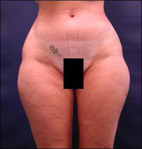 Liposuction Picture - See Patient Pictures