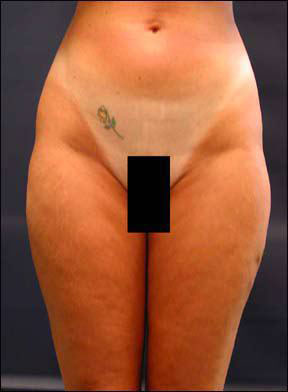 Liposuction Picture - Surgery of the Abdomen
