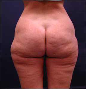 Liposuction Picture - Before and After Surgery