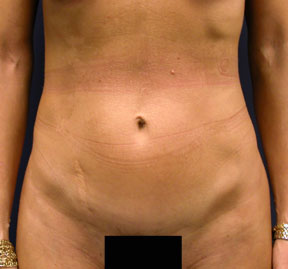 Tummy Tuck Photo - Mini Tummy Tuck Results