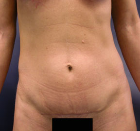 Tummy Tuck Photo - Mini Tummy Tuck Result