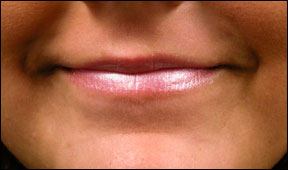 Lip Enhancement - The Actual Results