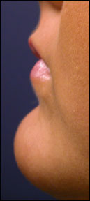Lip Enhancement - Patient Pictures
