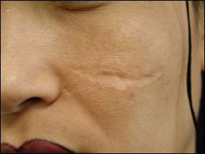 Scar - Removal and Treatment