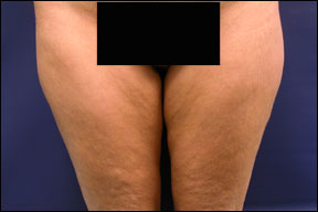 Thigh Lift Picture - The Before Pictures