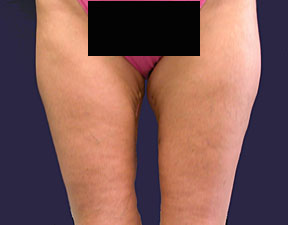 Thigh Lift Picture - After Pictures