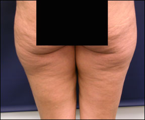 Thigh Lift Picture - Excess Skin