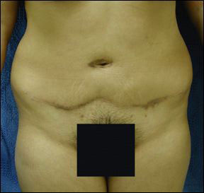 Chicago Panniculectomy plastic cosmetic surgery