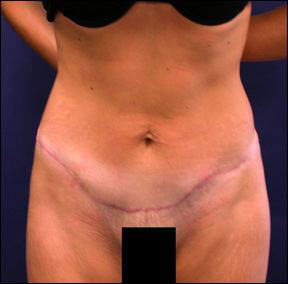 Chicago Tummy Tuck Picture